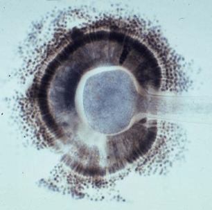 Aspergillus2
